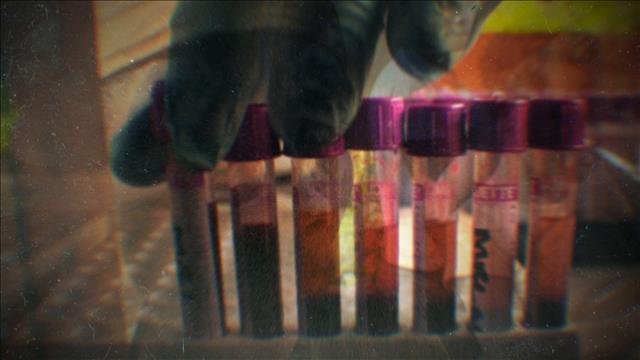 SIDA : AUX ORIGINES DE L'ÉPIDÉMIE