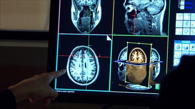 Le cerveau bilingue