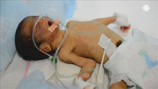 Ces bébés qui pourraient être sauvés
