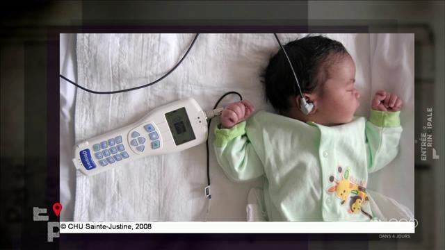 Dépister la surdité chez les nouveau nés