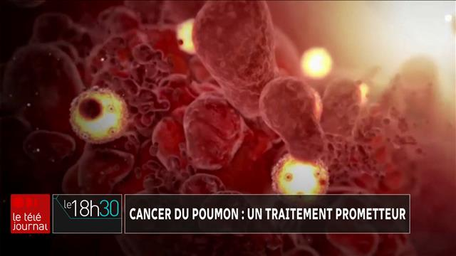 Cancer du poumon : un traitement prometteur