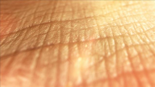De la peau cultivée en laboratoire