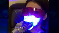 Les dangers du blanchiment des dents