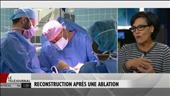 Après la mastectomie, le tabou de la reconstruction