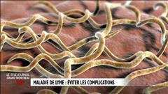 Informations médicales sur la maladie de Lyme